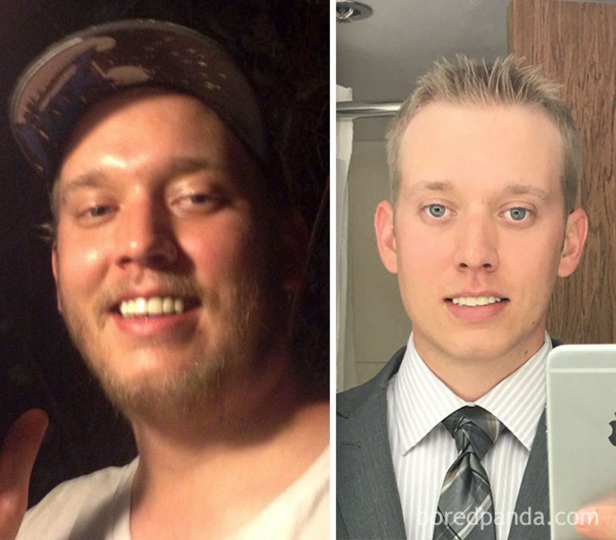 Before and after photos of alcoholics