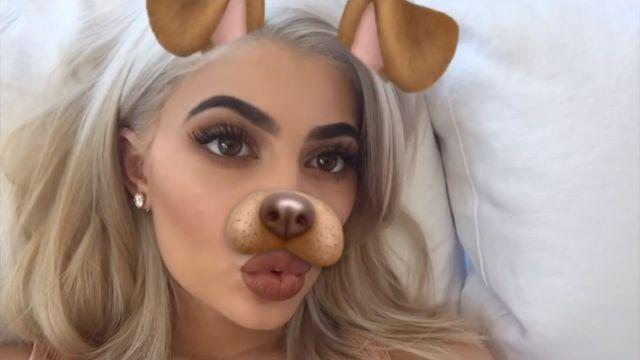 Cirujano revela todas las operaciones de Kylie Jenner
