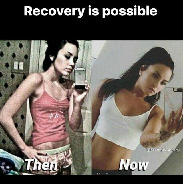 Demi Lovato bulimia