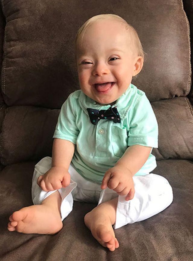 Lucas Warren, el primer bebé Gerber con Síndrome de Down