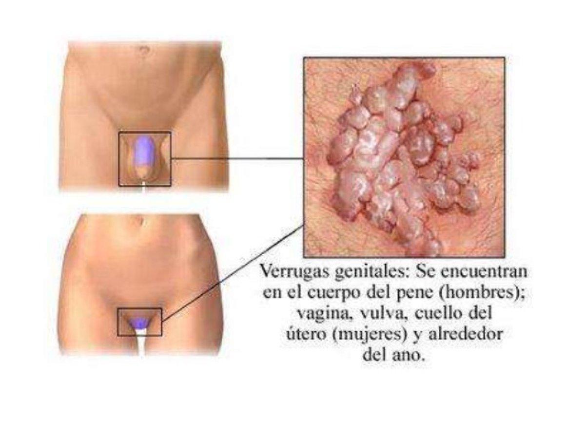 enfermedades de transmision sexualidad hombres imagenes